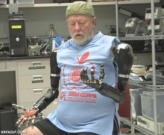 Enlace a El primer hombre en controlar dos brazos protésicos a la altura del hombro a la vez