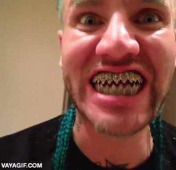 Enlace a Espero que estos dientes de oro se puedan quitar, si no menuda aberración