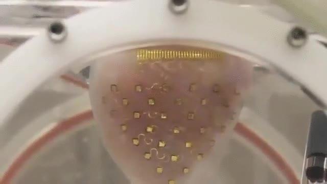 Enlace a Esto es una especie de funda para corazones impresa en 3D que permite que no se pare nunca
