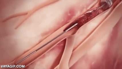 Enlace a Un sistema médico para eliminar los coágulos y obstrucciones de las venas