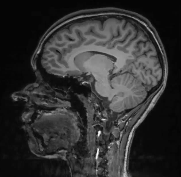 Enlace a Una resonancia magnética craneal convertida en gif