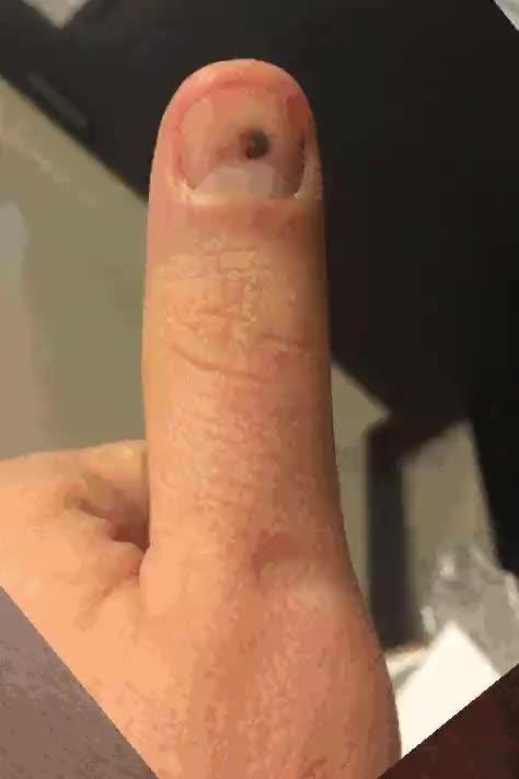 Enlace a Lo que le pasa a una uña cuando la golpeas con un martillo