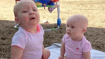 Enlace a Cuando estornudas tan fuerte que derribas a tu hermano pequeño