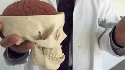 Enlace a Esto es lo que pasa cuando sufrimos una contusion cerebral