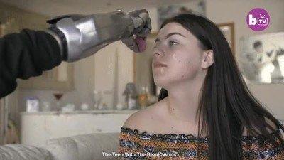 Enlace a Así es ser una adolescente y tener un brazo biónico