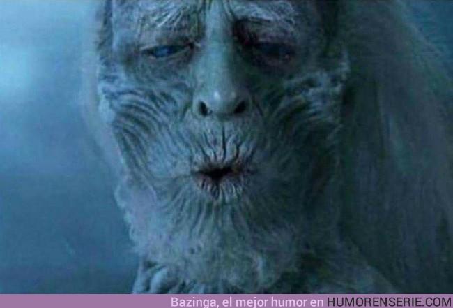 20932 - Tu cara cuando te comes una croqueta que quema mucho