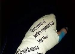 Enlace a Le firman la escayola a Iker Casillas