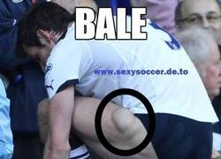 Enlace a Bale y su extraño músculo