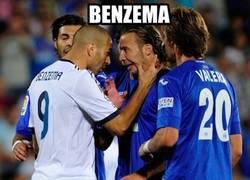 Enlace a Benzema y sus dotes de dentista