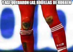 Enlace a Y así quedaron las rodillas de Robben