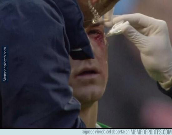 235621 - Así le quedó el ojo a Hart tras chocar con Jerome