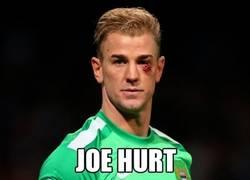 Enlace a Joe Hart pasa a ser Joe Hurt