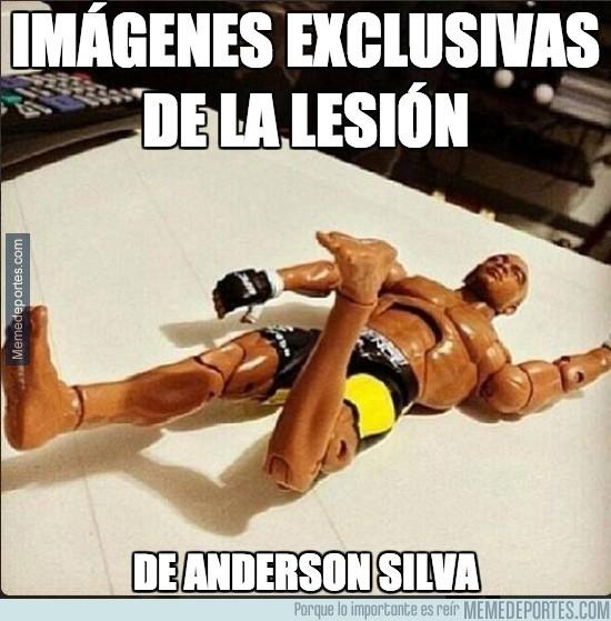 236563 - Imágenes exclusivas de la lesión de Anderson Silva