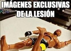 Enlace a Imágenes exclusivas de la lesión de Anderson Silva
