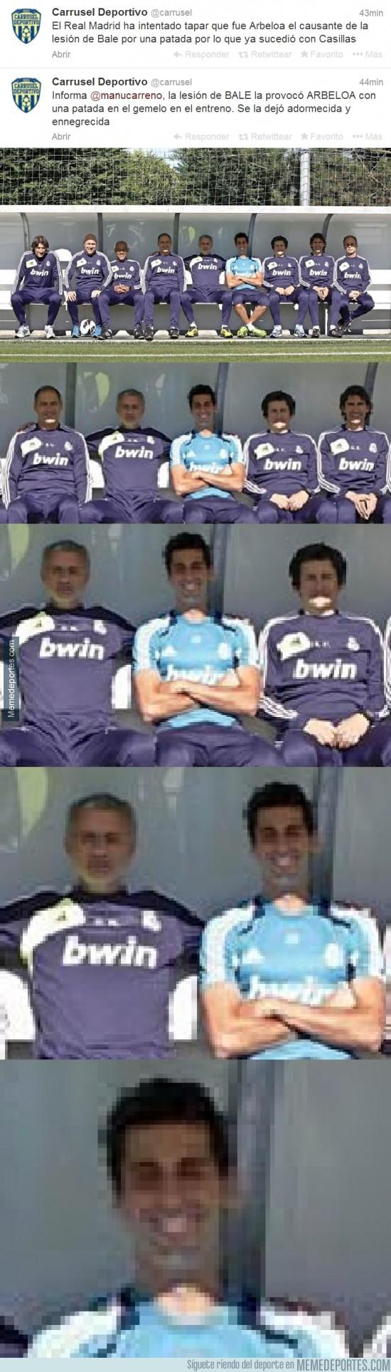 241681 - Arbeloa fue el causante de la lesión de Bale