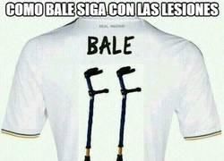 Enlace a Como Bale siga con las lesiones