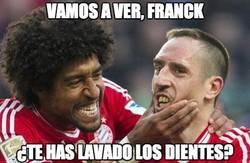 Enlace a Vamos a ver, Franck