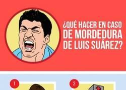 Enlace a Qué hacer en caso de mordedura de Luis Suárez