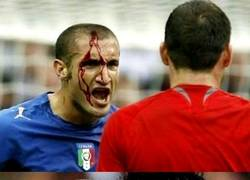 Enlace a Giorgio Chiellini, a prueba de balas