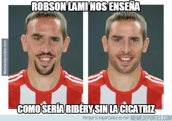 440418 - ¿Te habías imaginado alguna vez a Ribery sin cicatriz?