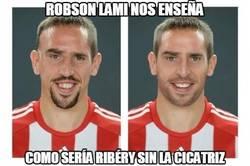 Enlace a ¿Te habías imaginado alguna vez a Ribery sin cicatriz?