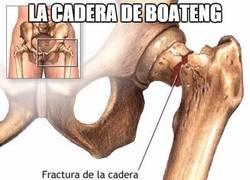Enlace a Tenemos una instantánea de cómo ha quedado la cadera de Boateng