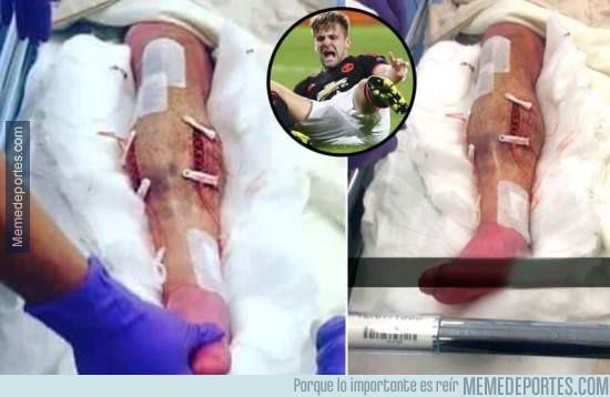 689082 - ¡Escalofriante! , así está la pierna de Luke Shaw tras ser operado