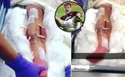 Enlace a ¡Escalofriante! , así está la pierna de Luke Shaw tras ser operado