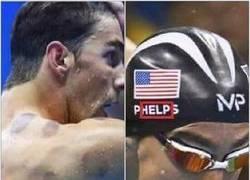 Enlace a Michael Phelps está pidiendo ayuda, sus moratones lo indican
