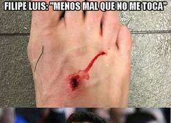 Enlace a Así quedó el pie de Filipe Luis después del partido