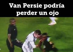 Enlace a Van Persie podría perder el ojo tras este brutal codazo :(