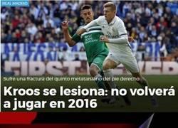 Enlace a Las lesiones del Madrid es para hacérselo mirar