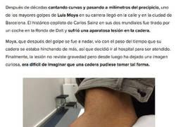 Enlace a Así quedó la cadera de Luis Moya tras sufrir un accidente de moto
