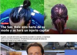 Enlace a Bale se va a injertar pelo
