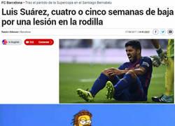 Enlace a Los culés no levantan cabeza, lesión de Suárez
