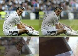 Enlace a Como vemos algunos la lesión de Bale