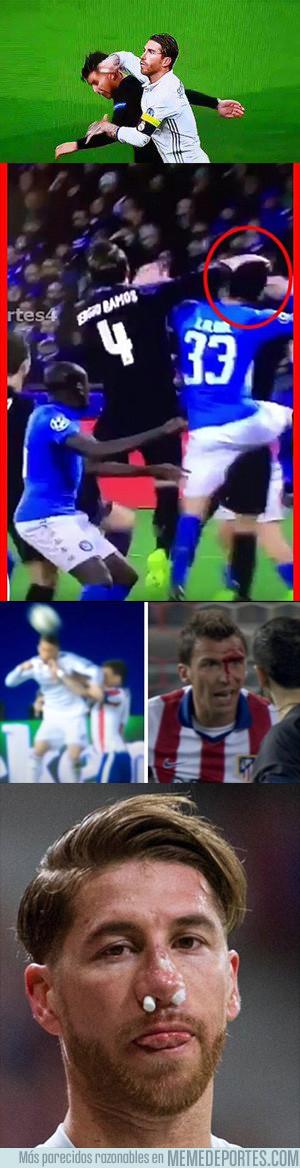 1008209 - Así le ha quedado la cara a Ramos tras un brutal golpe