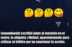 Enlace a Lewandowski muestra las consecuencias del golpe que recibió ante Sevilla y que no fue ni falta