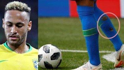 1043204 - La razón por la que Neymar juega con agujeros en las medias durante el Mundial