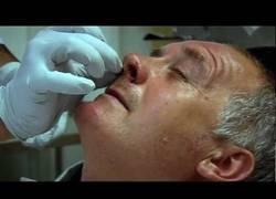 Enlace a ¿Crees que tienes la nariz congestionada? Espera a ver a este pobre hombre (abstenerse escrupulosos)