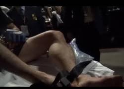 Enlace a Así terminó el cuerpo de Rory MacDonalds tras ganar el título de MMA
