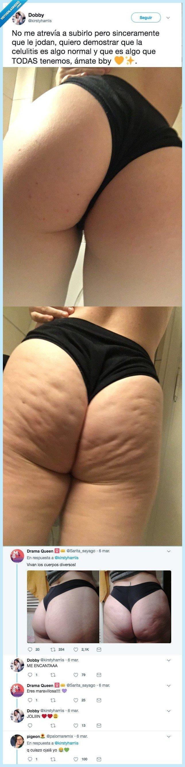 celiulitis,detrás,mujer,trasero