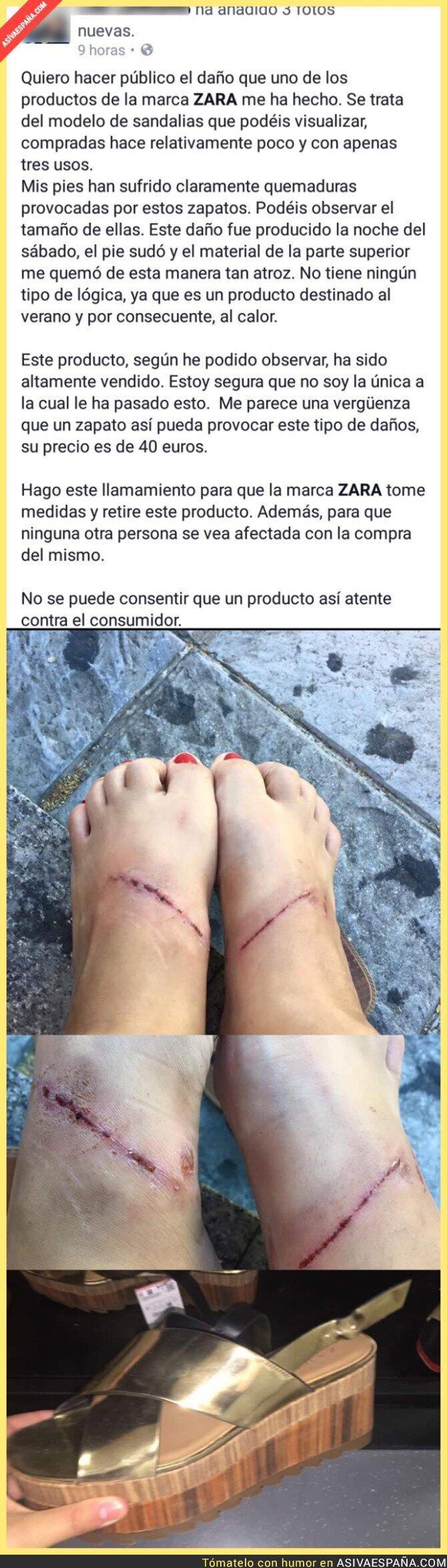 45465 - ¡OJO! Esta chica denuncia las graves heridas en los pies producidas por unos zapatos de ZARA