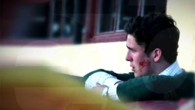 64550 - Se filtra esta foto de Froilán con la cara llena de sangre y el motivo no mola nada