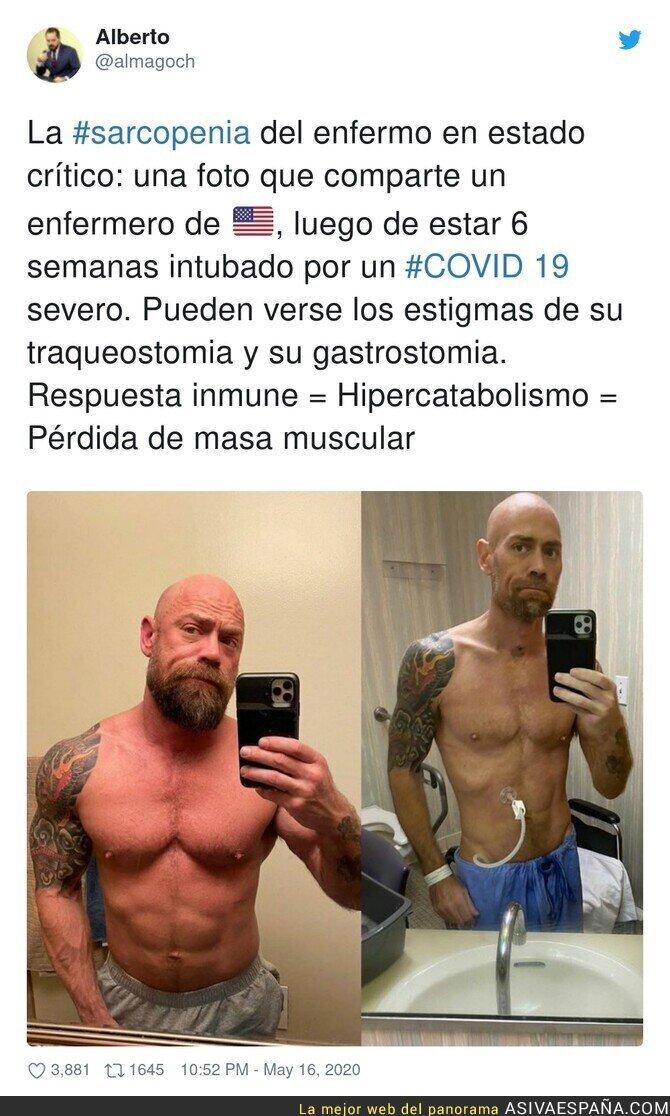 162506 - El efecto del COVID19 en una persona con un gran estado físico