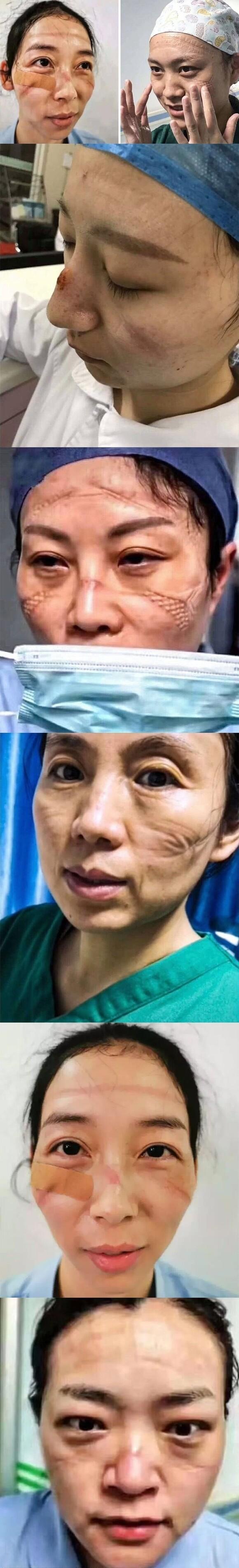 2773 - Enfermeras chinas comparten fotos de cómo se ven sus rostros después de incontables horas luchando contra el coronavirus