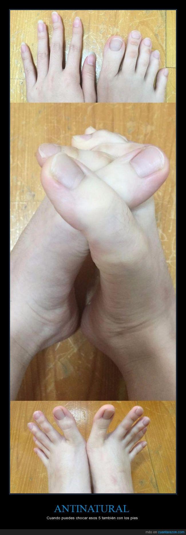 dedos,malformación,pies,raro