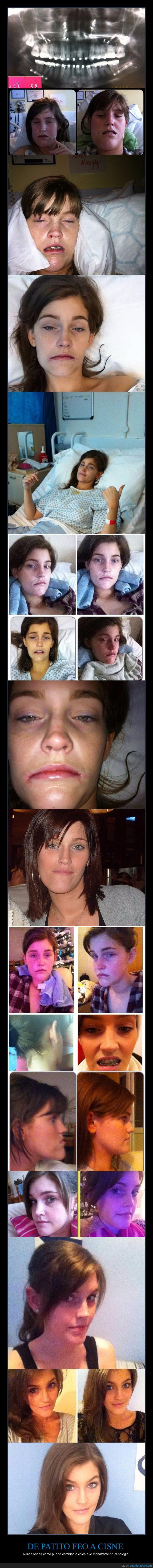 chica,cirugía,cisne,ortodoncia,patito feo