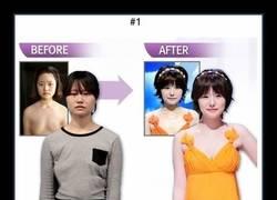 Enlace a 19 fotos de antes y después de un programa de TV coreano de cirugías estéticas drásticas