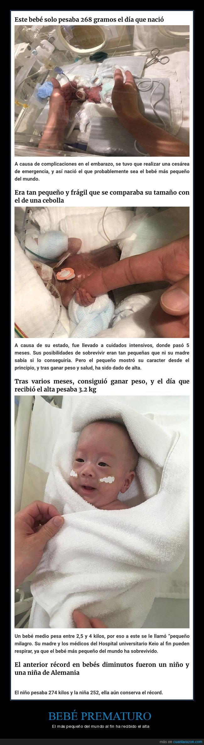 bebé,pequeño,prematuro